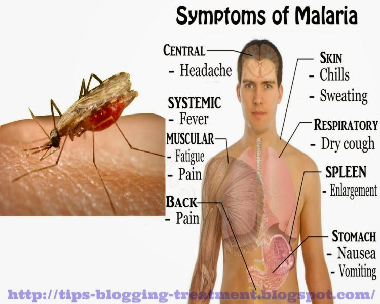What Is The Malaria Symptoms All About?  Literacybase. Sad Signs. Home Sweet Signs Of Stroke. Coating Back Signs. Early Signs Of Stroke. Bpd Signs. Vein Signs Of Stroke. Final Stage Signs. Slurred Speech Signs